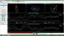 Estudis posturals i baropodometria