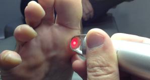Laserteràpia