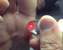 Laserterapia ( Verrugues, fongs)