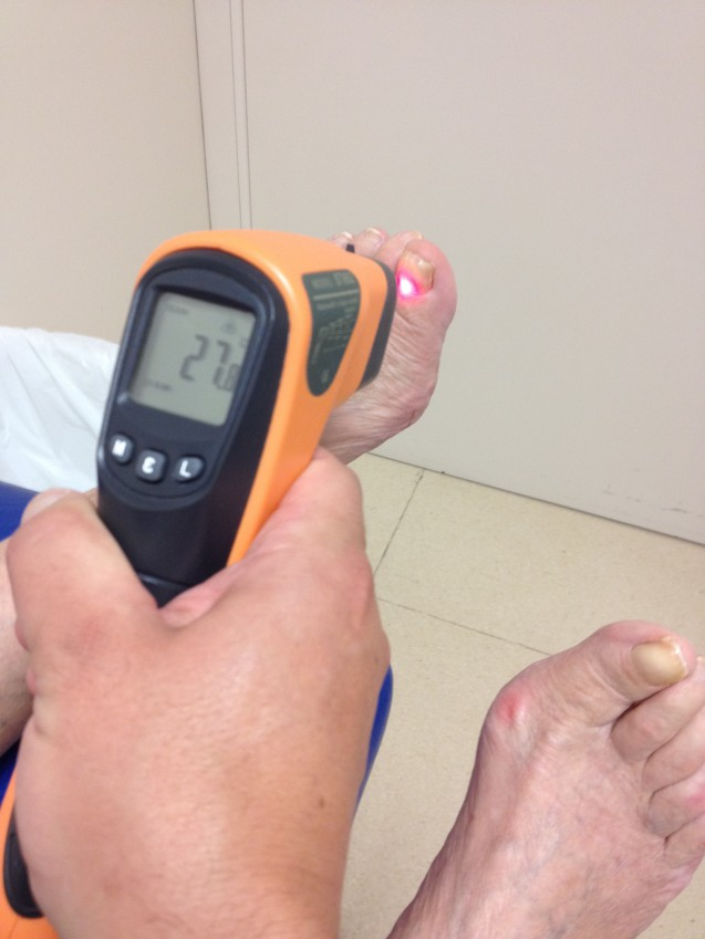 ¿Sabemos a que temperatura están  las uñas del pie, cuando aplicamos el Láser s30 de podylas 1064nm o 980 nm?