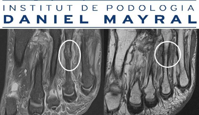 Fractura de estrés o de sobrecarga ósea del deportista por Institut de podologia Daniel Mayral