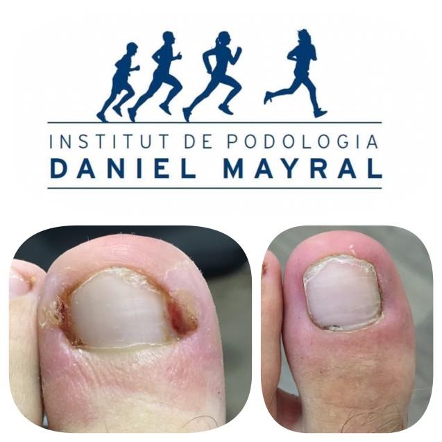 Las infecciones de uñas del pie, por un mal corte con las tijeras