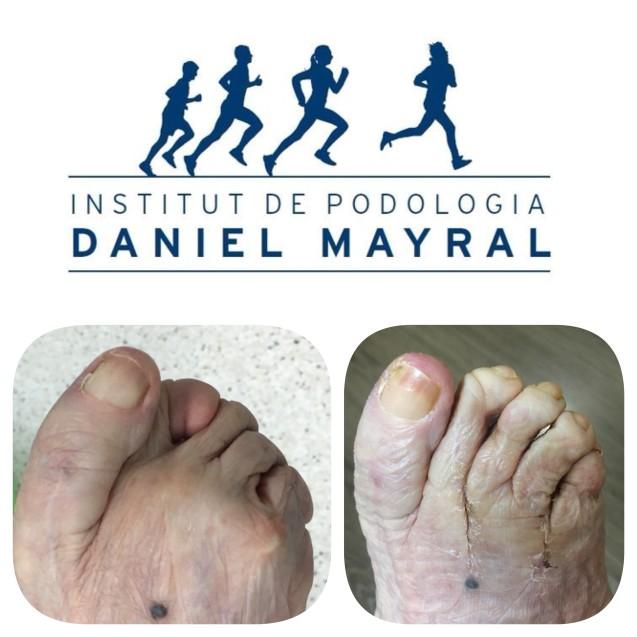 Los pies reumáticos y la solución quirúrgica.