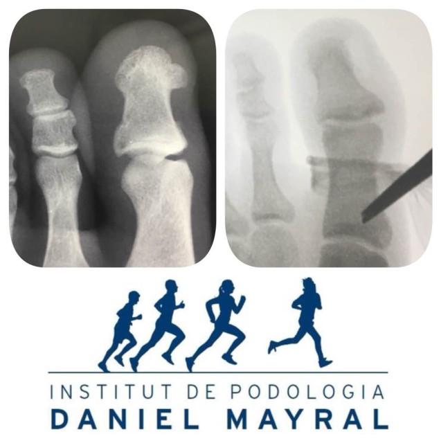 Exostosis o osteoma en el pie, solución quirúrgica.