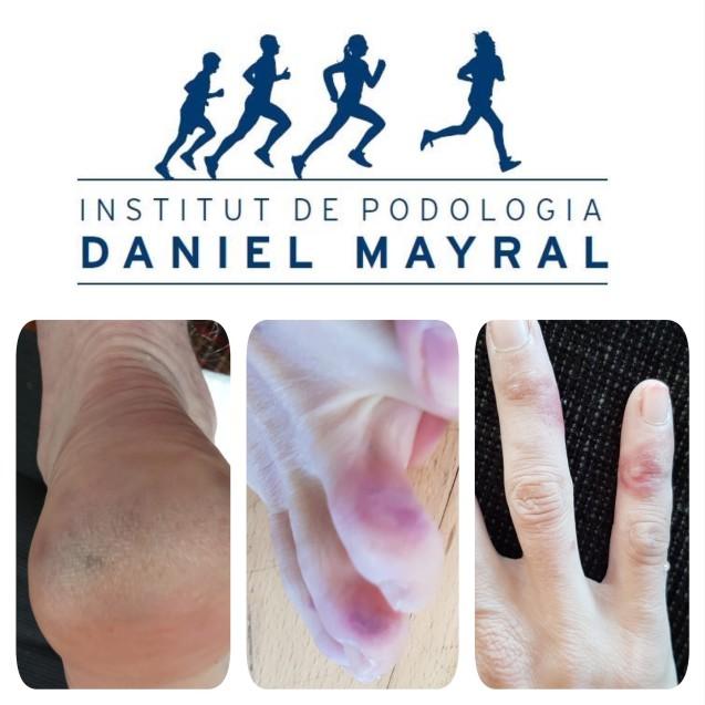 Posibles manifestaciones dérmicas en manos y pies en personas infectadas con SARS-CoV-2-19