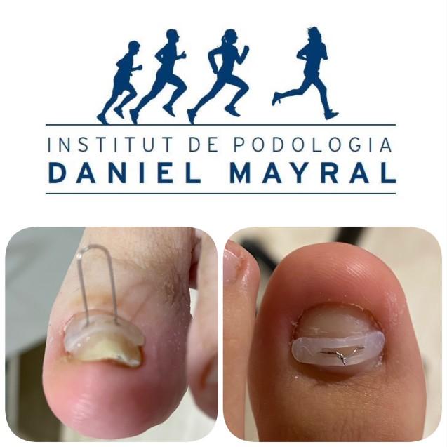 """ORTONIXIA ,la """"ortodoncia"""" de las uñas de los pies."""