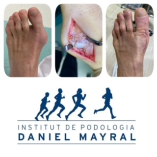 Artritis gotosa o Gota. Caso clínico intervención quirúrgica en el pie.